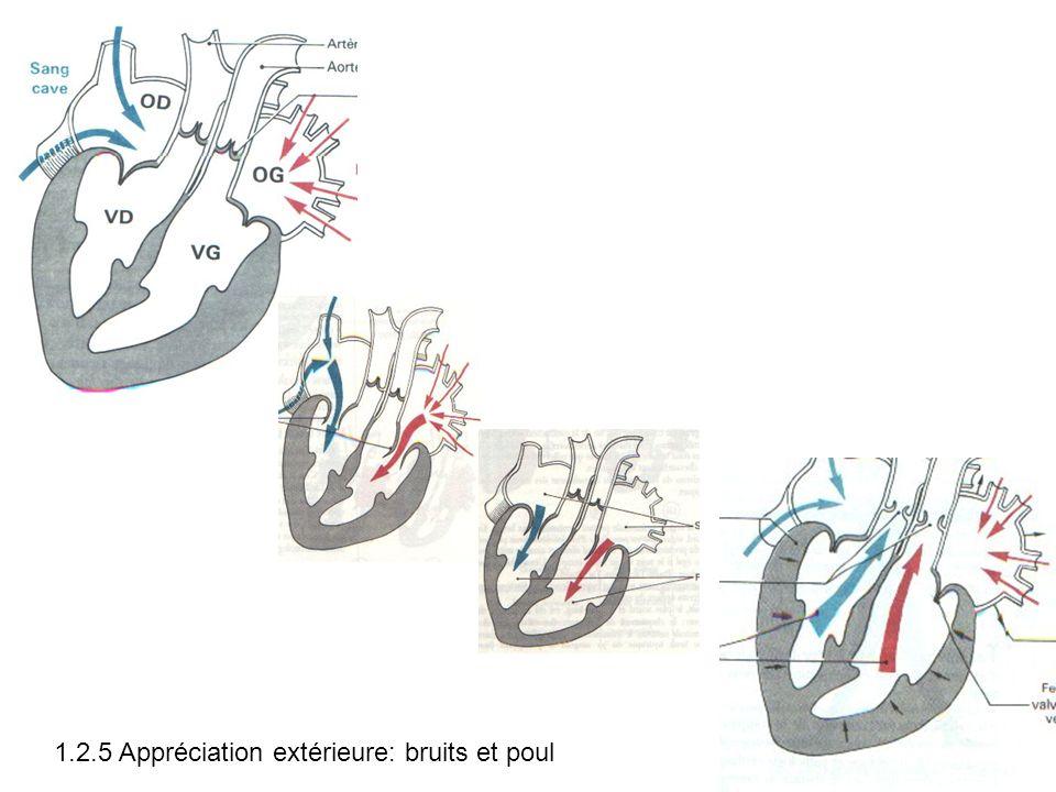 1.2.5 Appréciation extérieure: bruits et poul