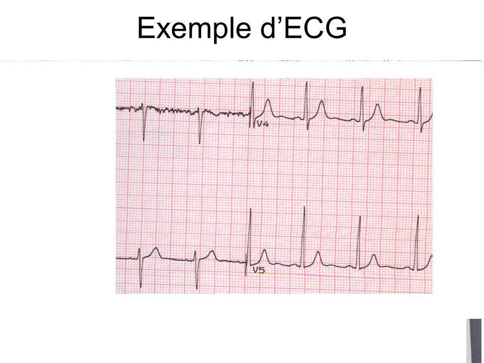 Exemple dECG