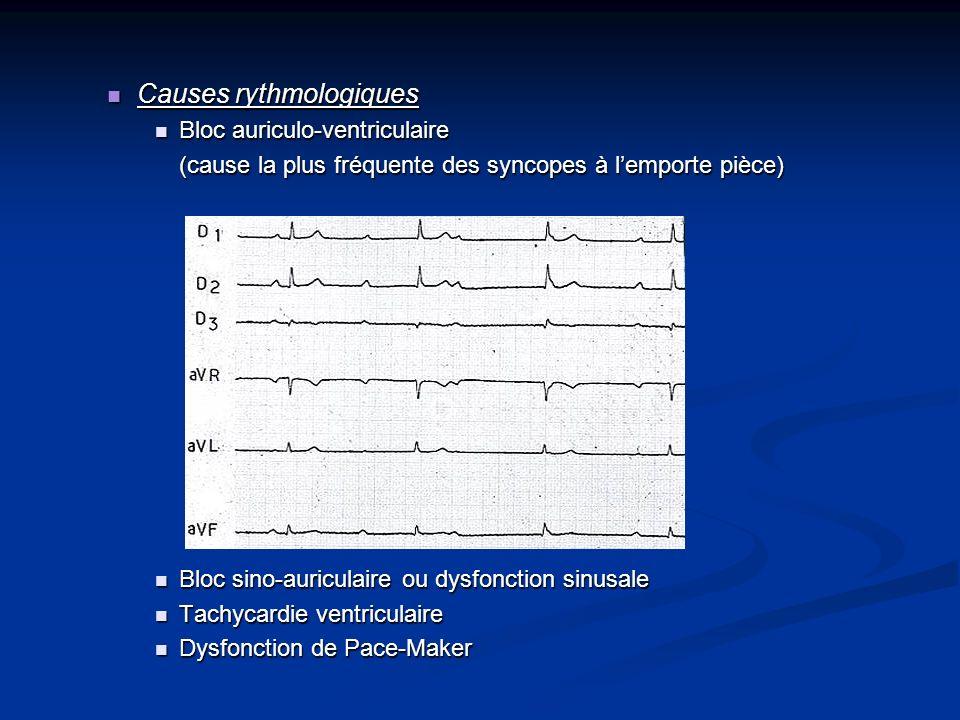 Causes rythmologiques Causes rythmologiques Bloc auriculo-ventriculaire Bloc auriculo-ventriculaire (cause la plus fréquente des syncopes à lemporte p