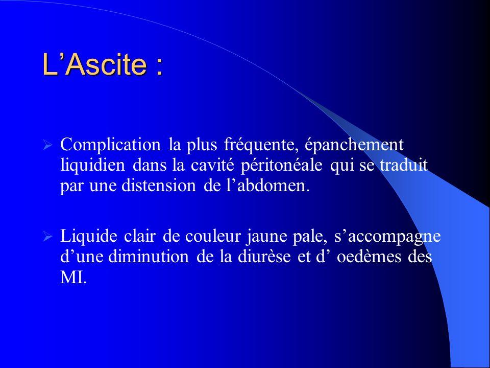 LAscite : Complication la plus fréquente, épanchement liquidien dans la cavité péritonéale qui se traduit par une distension de labdomen.