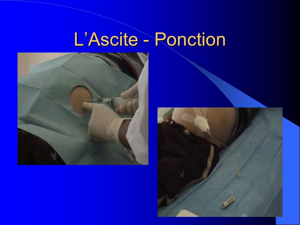 LAscite - Ponction