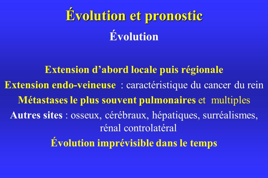 Évolution et pronostic Évolution Extension dabord locale puis régionale Extension endo-veineuse : caractéristique du cancer du rein Métastases le plus souvent pulmonaires et multiples Autres sites : osseux, cérébraux, hépatiques, surréalismes, rénal controlatéral Évolution imprévisible dans le temps