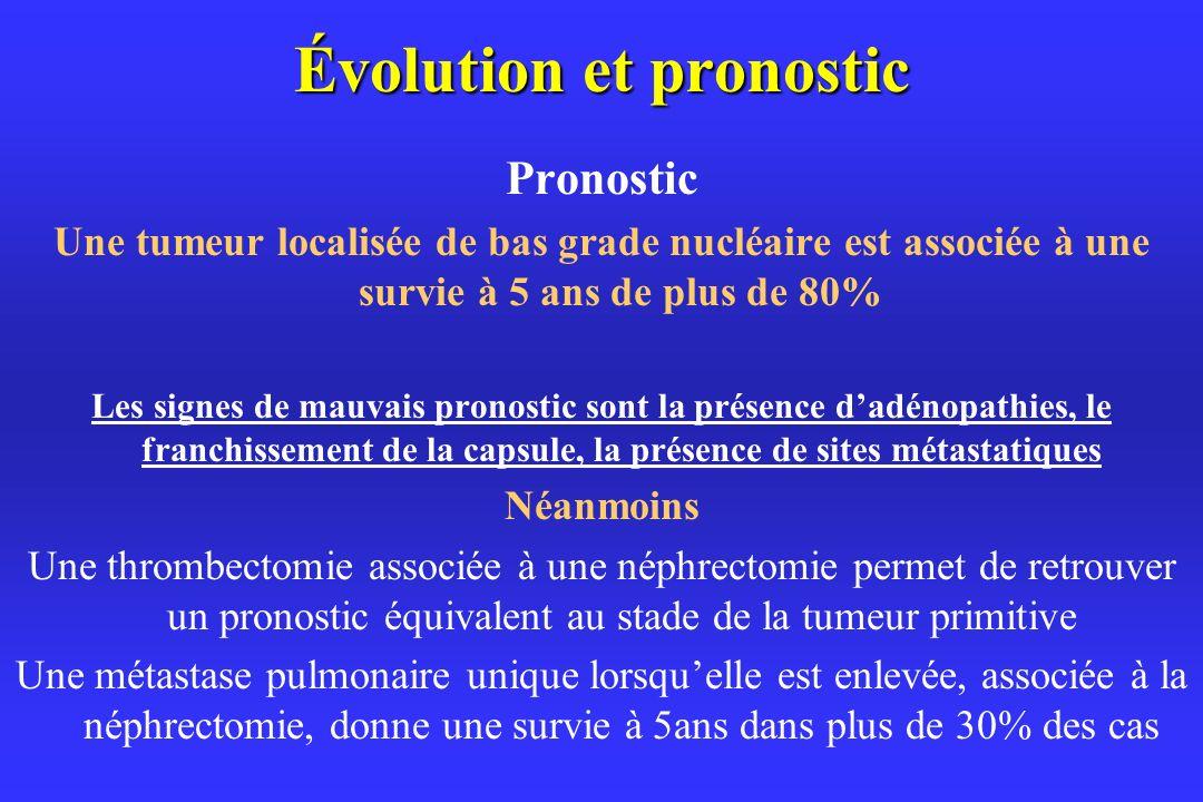 Évolution et pronostic Pronostic Une tumeur localisée de bas grade nucléaire est associée à une survie à 5 ans de plus de 80% Les signes de mauvais pronostic sont la présence dadénopathies, le franchissement de la capsule, la présence de sites métastatiques Néanmoins Une thrombectomie associée à une néphrectomie permet de retrouver un pronostic équivalent au stade de la tumeur primitive Une métastase pulmonaire unique lorsquelle est enlevée, associée à la néphrectomie, donne une survie à 5ans dans plus de 30% des cas