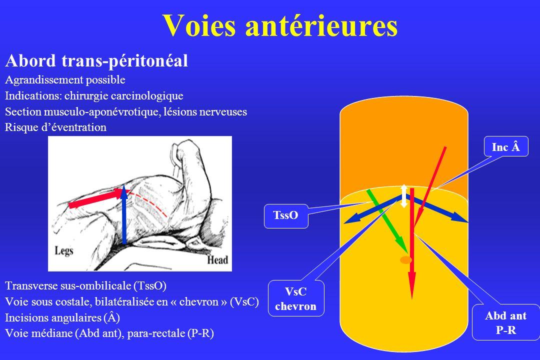 Voies antérieures Abord trans-péritonéal Agrandissement possible Indications: chirurgie carcinologique Section musculo-aponévrotique, lésions nerveuses Risque déventration Transverse sus-ombilicale (TssO) Voie sous costale, bilatéralisée en « chevron » (VsC) Incisions angulaires (Â) Voie médiane (Abd ant), para-rectale (P-R) VsC chevron TssO Abd ant P-R Inc Â