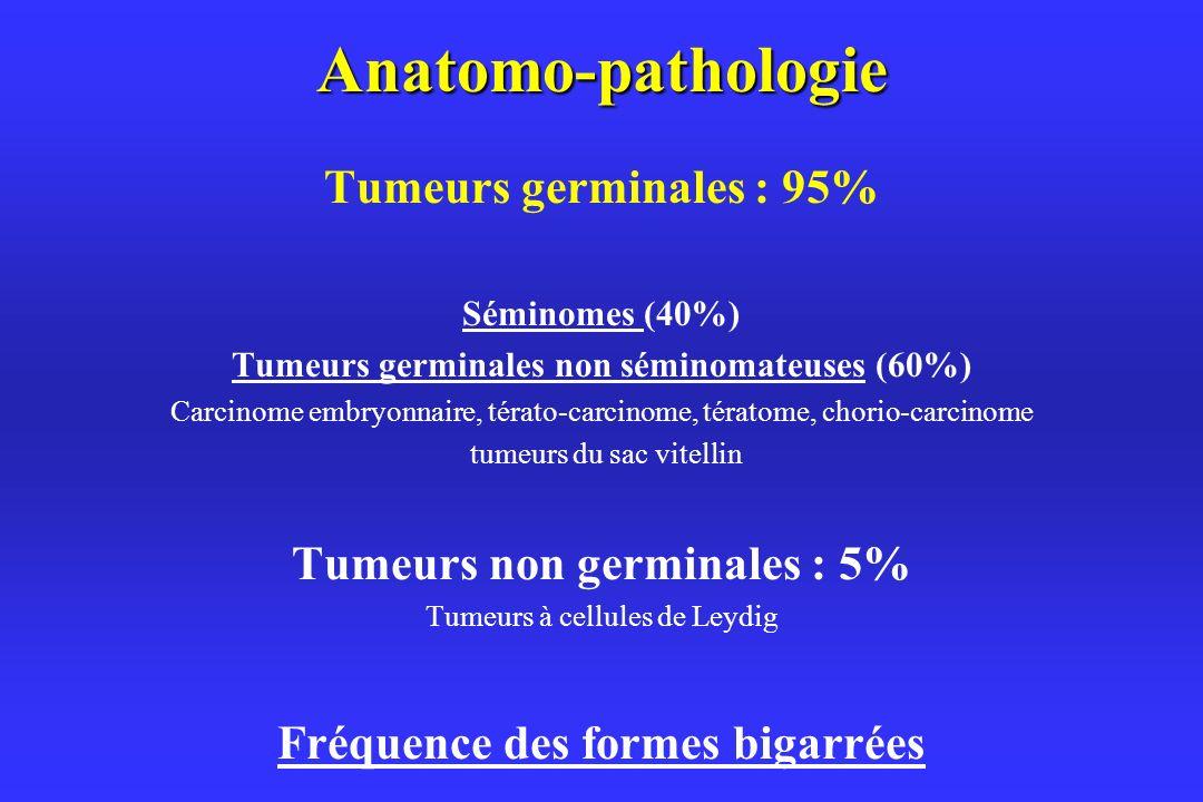 Anatomo-pathologie Tumeurs germinales : 95% Séminomes (40%) Tumeurs germinales non séminomateuses (60%) Carcinome embryonnaire, térato-carcinome, tératome, chorio-carcinome tumeurs du sac vitellin Tumeurs non germinales : 5% Tumeurs à cellules de Leydig Fréquence des formes bigarrées