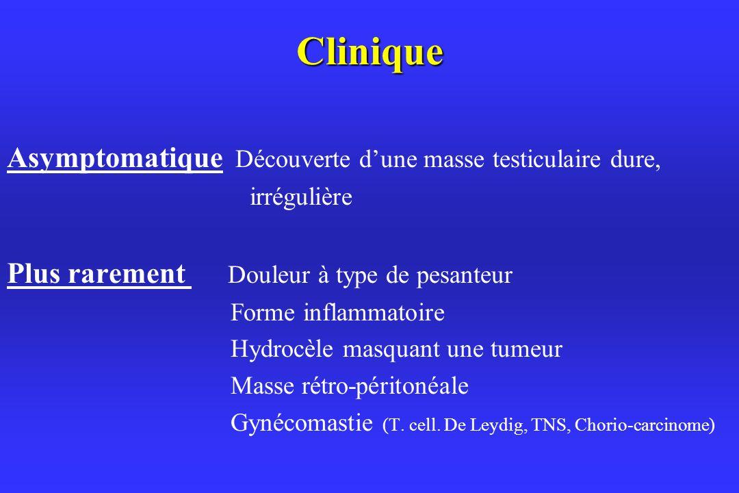 Clinique Asymptomatique Découverte dune masse testiculaire dure, irrégulière Plus rarement Douleur à type de pesanteur Forme inflammatoire Hydrocèle masquant une tumeur Masse rétro-péritonéale Gynécomastie (T.
