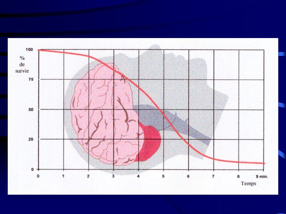 L arrêt cardiaque LA DEFIBRILLATION Seule la fibrillation ventriculaire est une indication de défibrillation par choc électrique externe Le choc électrique ramenant toutes les cellules myocardiques en phase réfractaire essaye de les resynchroniser L asystolie et la dissociation électro-mécanique ne sont pas des indications de choc électrique externe mais doivent bénéficier d une RCP de base