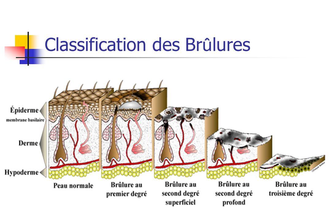 Classification des Br û lures Brûlure dermatologique sans conséquence fonctionnelle vitale. Brûlure médico-chirurgicale. fonctionnelle, esthétique ou