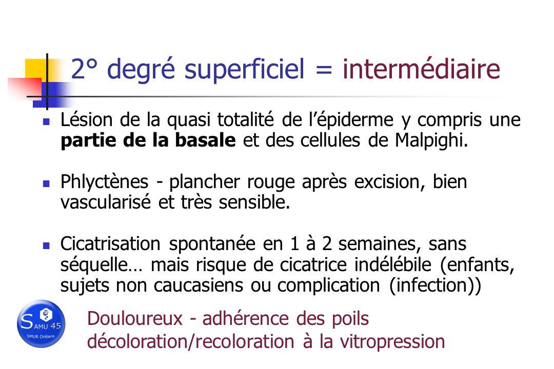 2° degré superficiel = intermédiaire Lésion de la quasi totalité de lépiderme y compris une partie de la basale et des cellules de Malpighi. Phlyctène