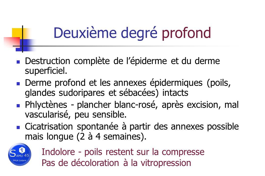 Deuxième degré profond Destruction complète de lépiderme et du derme superficiel. Derme profond et les annexes épidermiques (poils, glandes sudoripare