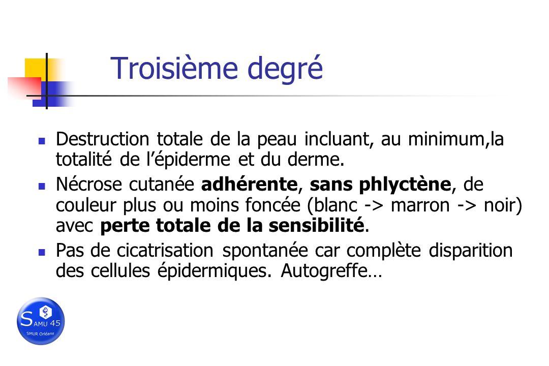 Troisième degré Destruction totale de la peau incluant, au minimum,la totalité de lépiderme et du derme. Nécrose cutanée adhérente, sans phlyctène, de