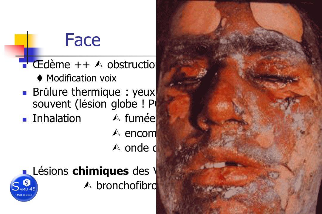 Face Œdème ++ obstruction VAS ! I/Vm rapide… Modification voix Br û lure thermique : yeux ferm é s, globes oculaires souvent (l é sion globe ! PC ! AV