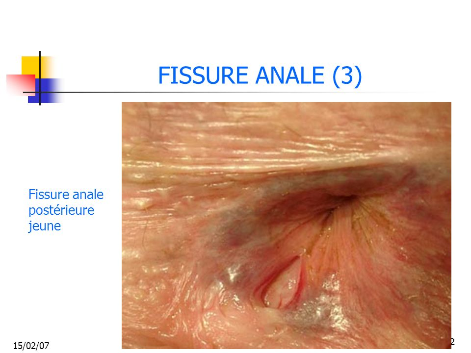15/02/07 32 FISSURE ANALE (3) Fissure anale postérieure jeune