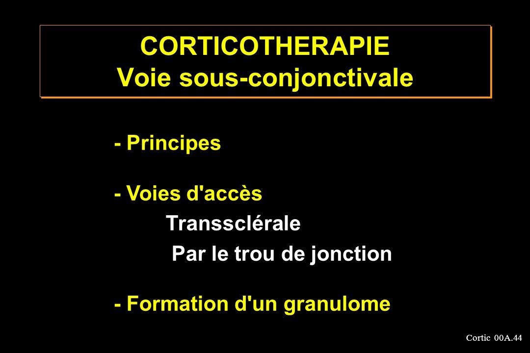 Cortic 00A.44 CORTICOTHERAPIE Voie sous-conjonctivale - Principes - Voies d'accès Transsclérale Par le trou de jonction - Formation d'un granulome