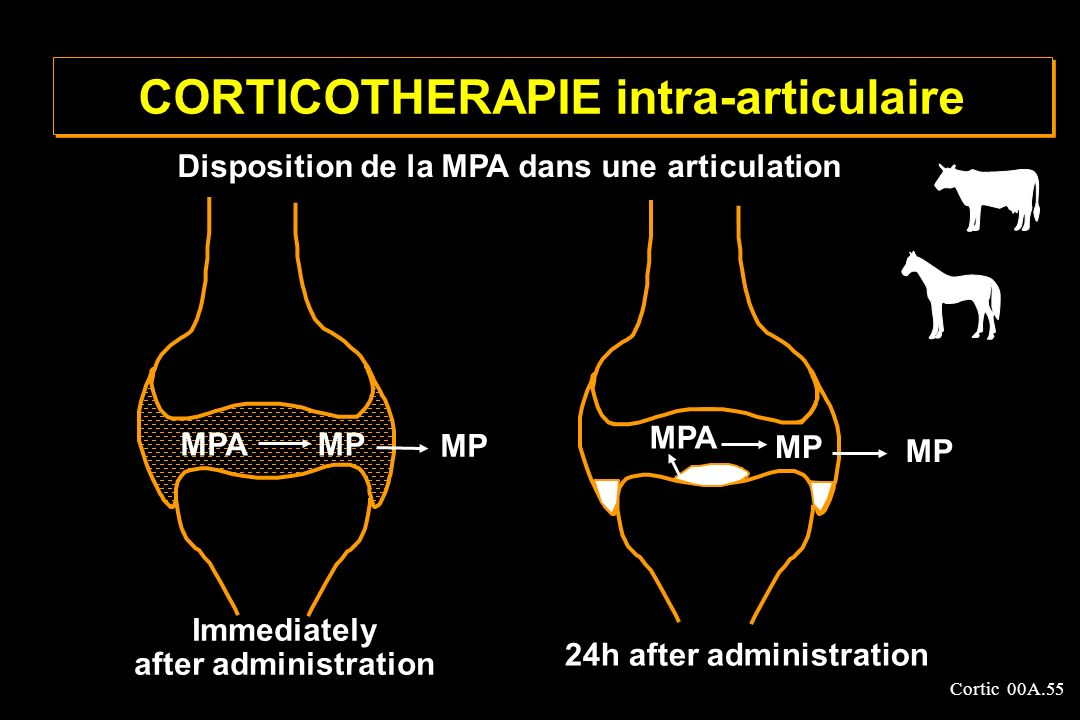 Cortic 00A.55 CORTICOTHERAPIE intra-articulaire MP Immediately after administration 24h after administration MP MPA Disposition de la MPA dans une art