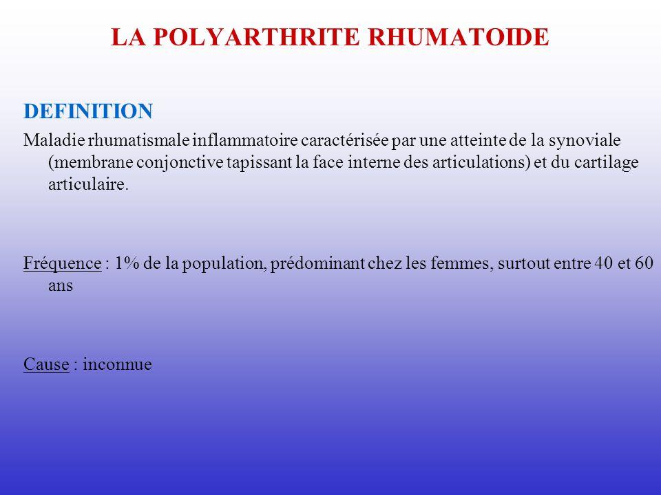 LA POLYARTHRITE RHUMATOIDE DEFINITION Maladie rhumatismale inflammatoire caractérisée par une atteinte de la synoviale (membrane conjonctive tapissant