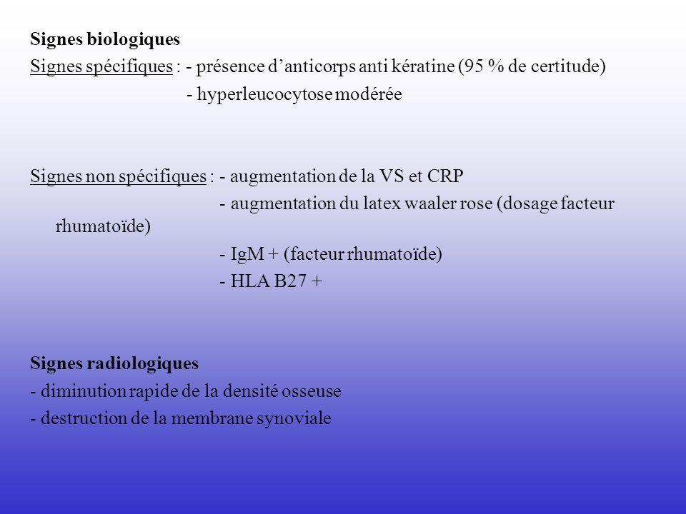 Signes biologiques Signes spécifiques : - présence danticorps anti kératine (95 % de certitude) - hyperleucocytose modérée Signes non spécifiques : -