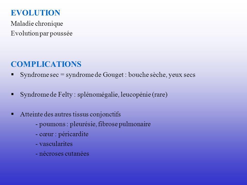 EVOLUTION Maladie chronique Evolution par poussée COMPLICATIONS Syndrome sec = syndrome de Gouget : bouche sèche, yeux secs Syndrome de Felty : spléno