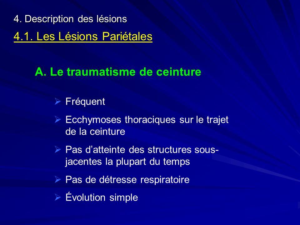 4. Description des lésions 4.1. Les Lésions Pariétales A. Le traumatisme de ceinture Fréquent Ecchymoses thoraciques sur le trajet de la ceinture Pas
