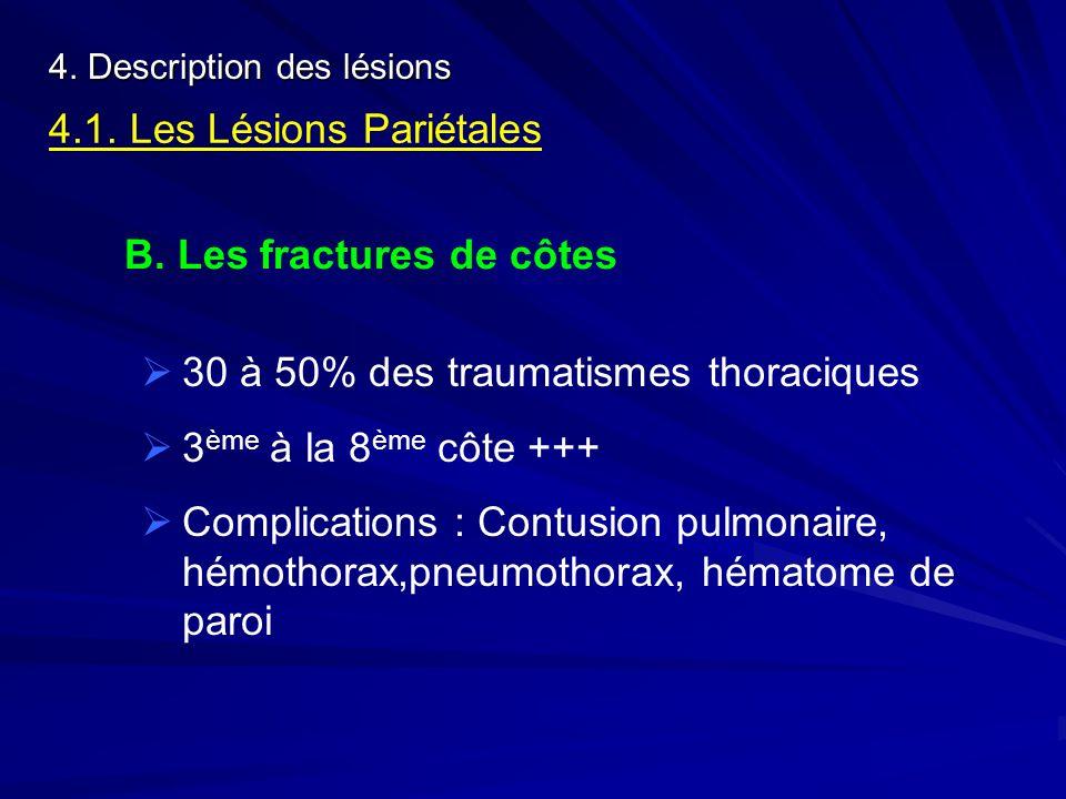 4. Description des lésions 4.1. Les Lésions Pariétales B. Les fractures de côtes 30 à 50% des traumatismes thoraciques 3 ème à la 8 ème côte +++ Compl