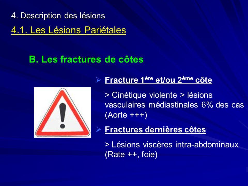 4. Description des lésions 4.1. Les Lésions Pariétales B. Les fractures de côtes Fracture 1 ère et/ou 2 ème côte > Cinétique violente > lésions vascul