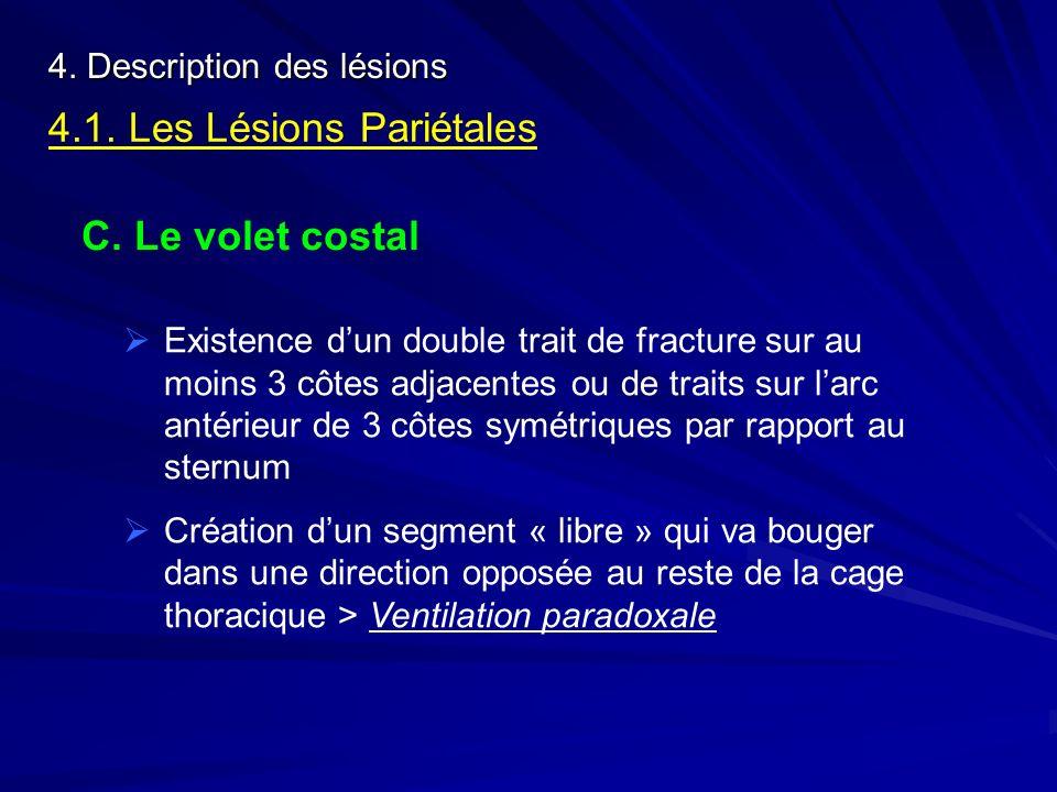 4. Description des lésions 4.1. Les Lésions Pariétales C. Le volet costal Existence dun double trait de fracture sur au moins 3 côtes adjacentes ou de
