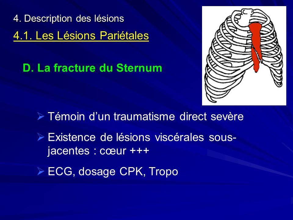 4. Description des lésions 4.1. Les Lésions Pariétales D. La fracture du Sternum Témoin dun traumatisme direct sevère Existence de lésions viscérales