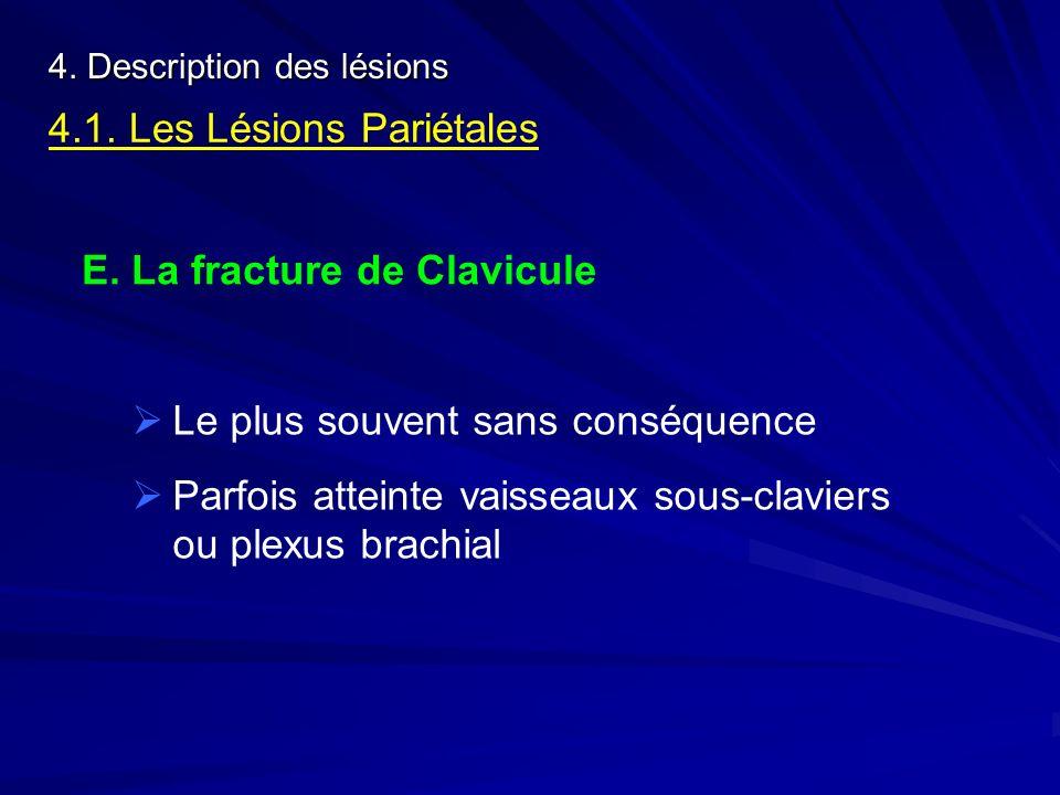 4. Description des lésions 4.1. Les Lésions Pariétales E. La fracture de Clavicule Le plus souvent sans conséquence Parfois atteinte vaisseaux sous-cl