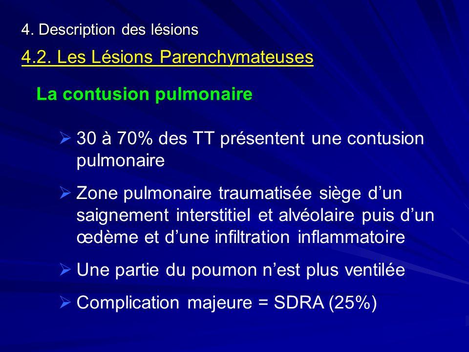 4. Description des lésions 4.2. Les Lésions Parenchymateuses La contusion pulmonaire 30 à 70% des TT présentent une contusion pulmonaire Zone pulmonai