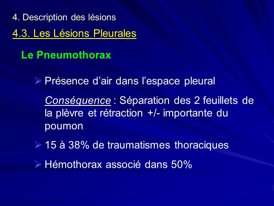 4. Description des lésions 4.3. Les Lésions Pleurales Le Pneumothorax Présence dair dans lespace pleural Conséquence : Séparation des 2 feuillets de l