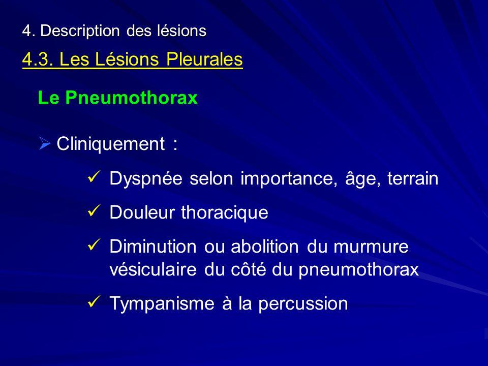 4. Description des lésions 4.3. Les Lésions Pleurales Le Pneumothorax Cliniquement : Dyspnée selon importance, âge, terrain Douleur thoracique Diminut