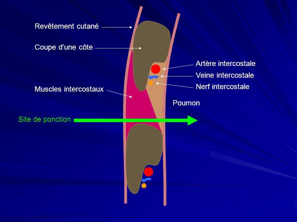 Coupe dune côte Artère intercostale Veine intercostale Nerf intercostale Muscles intercostaux Revêtement cutané Poumon Site de ponction