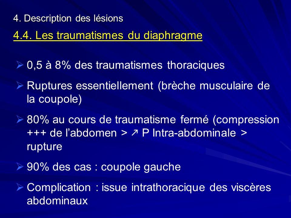 4. Description des lésions 4.4. Les traumatismes du diaphragme 0,5 à 8% des traumatismes thoraciques Ruptures essentiellement (brèche musculaire de la