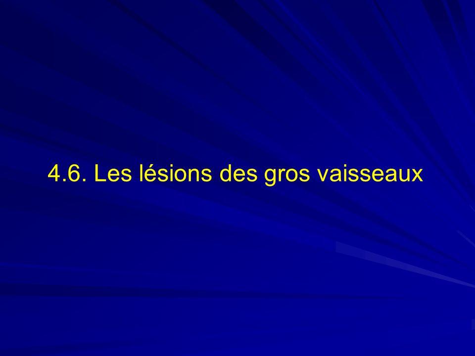 4.6. Les lésions des gros vaisseaux