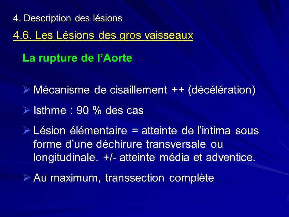 4. Description des lésions 4.6. Les Lésions des gros vaisseaux La rupture de lAorte Mécanisme de cisaillement ++ (décélération) Isthme : 90 % des cas