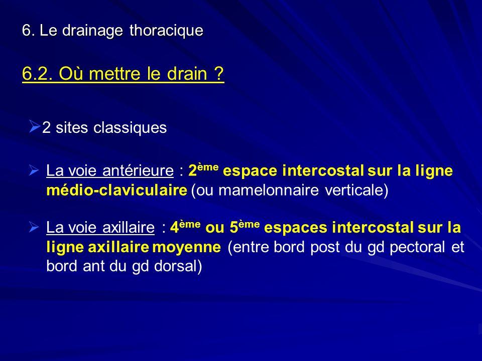 6. Le drainage thoracique 6.2. Où mettre le drain ? 2 sites classiques La voie antérieure : 2 ème espace intercostal sur la ligne médio-claviculaire (
