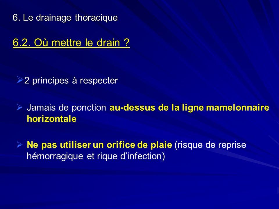 6. Le drainage thoracique 6.2. Où mettre le drain ? 2 principes à respecter Jamais de ponction au-dessus de la ligne mamelonnaire horizontale Ne pas u