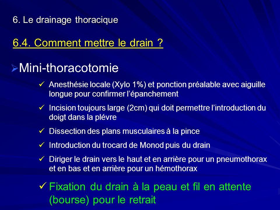 6. Le drainage thoracique 6.4. Comment mettre le drain ? Mini-thoracotomie Anesthésie locale (Xylo 1%) et ponction préalable avec aiguille longue pour
