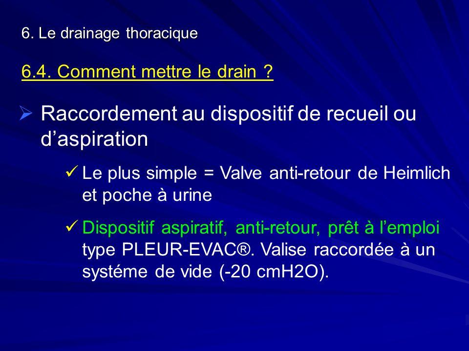 6. Le drainage thoracique 6.4. Comment mettre le drain ? Raccordement au dispositif de recueil ou daspiration Le plus simple = Valve anti-retour de He