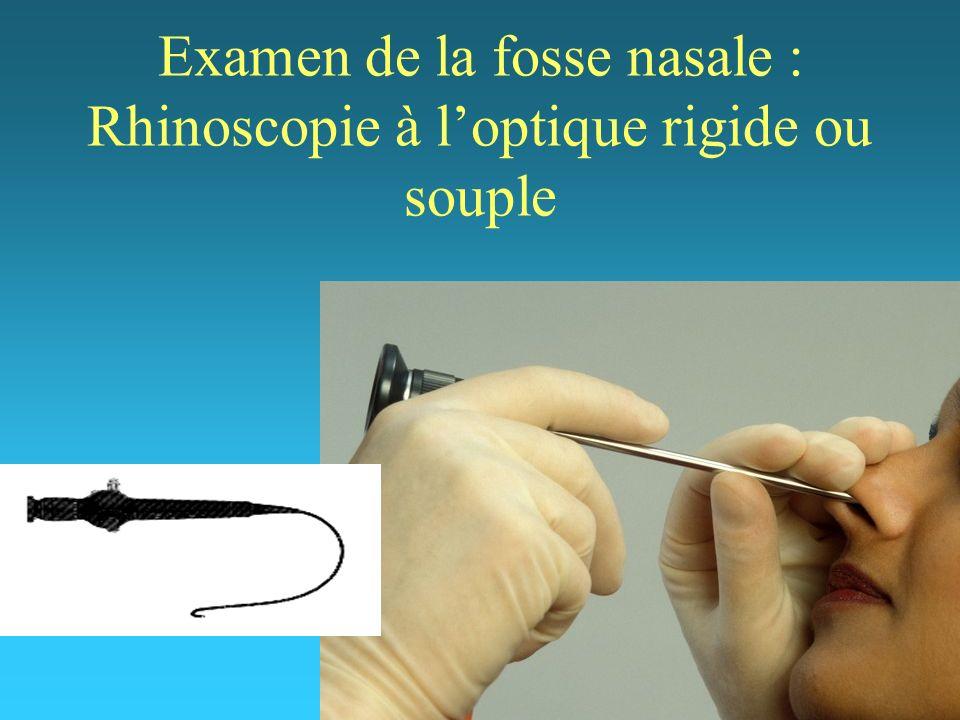 Examen de la fosse nasale : Rhinoscopie à loptique rigide ou souple