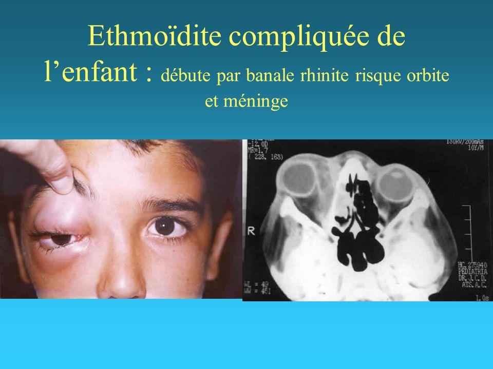 Ethmoïdite compliquée de lenfant : débute par banale rhinite risque orbite et méninge
