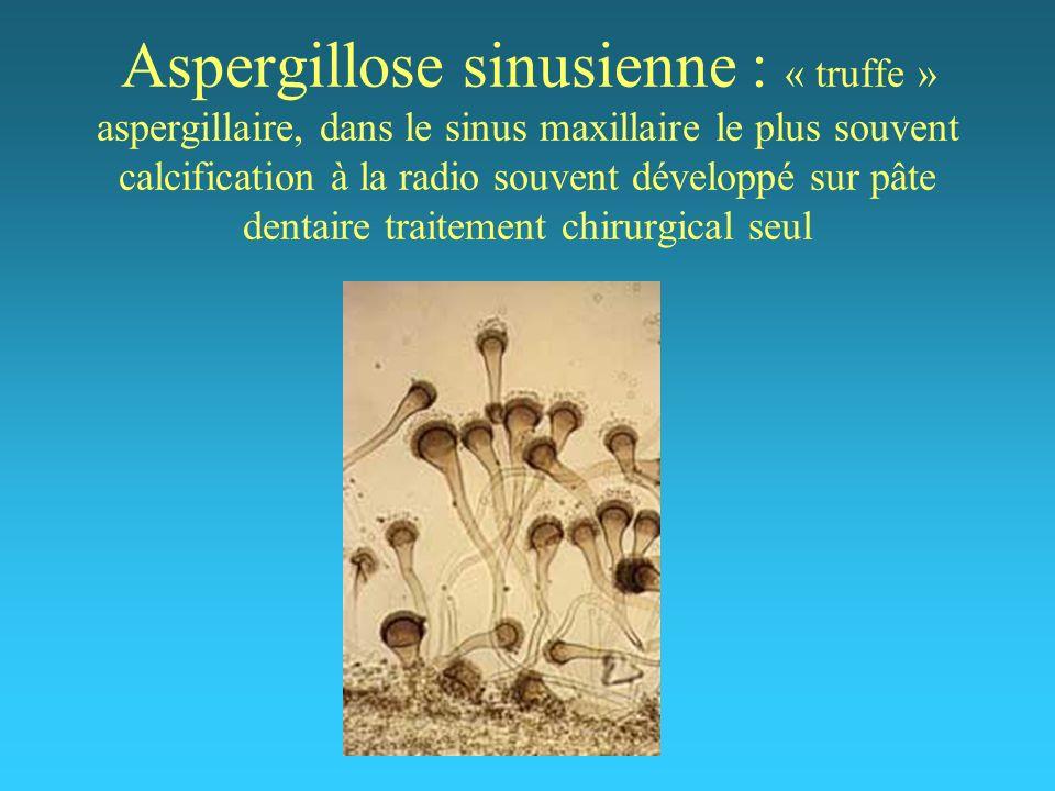 Aspergillose sinusienne : « truffe » aspergillaire, dans le sinus maxillaire le plus souvent calcification à la radio souvent développé sur pâte denta