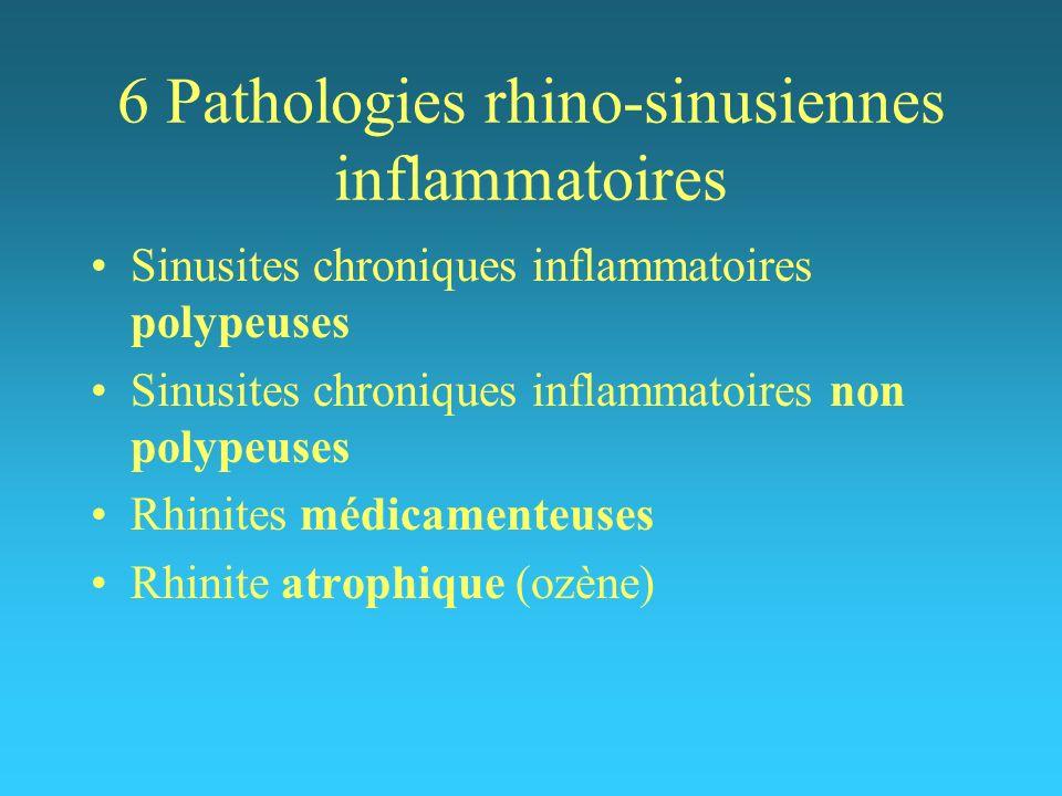 6 Pathologies rhino-sinusiennes inflammatoires Sinusites chroniques inflammatoires polypeuses Sinusites chroniques inflammatoires non polypeuses Rhini