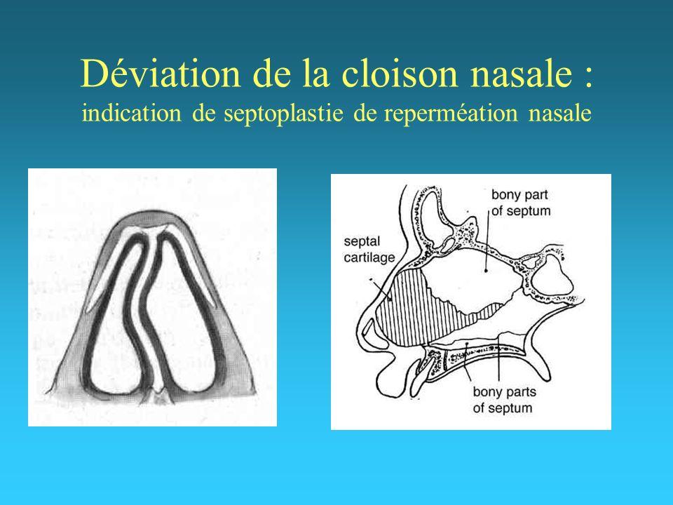 Déviation de la cloison nasale : indication de septoplastie de reperméation nasale
