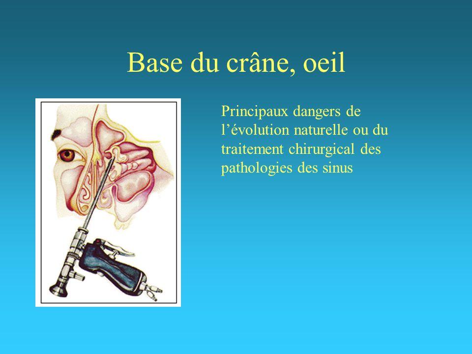 Base du crâne, oeil Principaux dangers de lévolution naturelle ou du traitement chirurgical des pathologies des sinus
