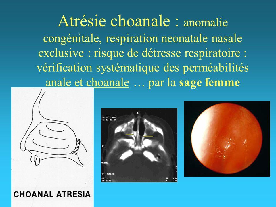 Atrésie choanale : anomalie congénitale, respiration neonatale nasale exclusive : risque de détresse respiratoire : vérification systématique des perm