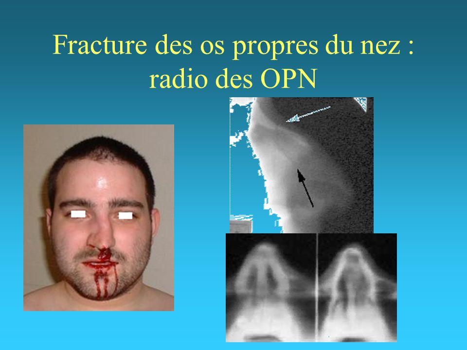 Fracture des os propres du nez : radio des OPN