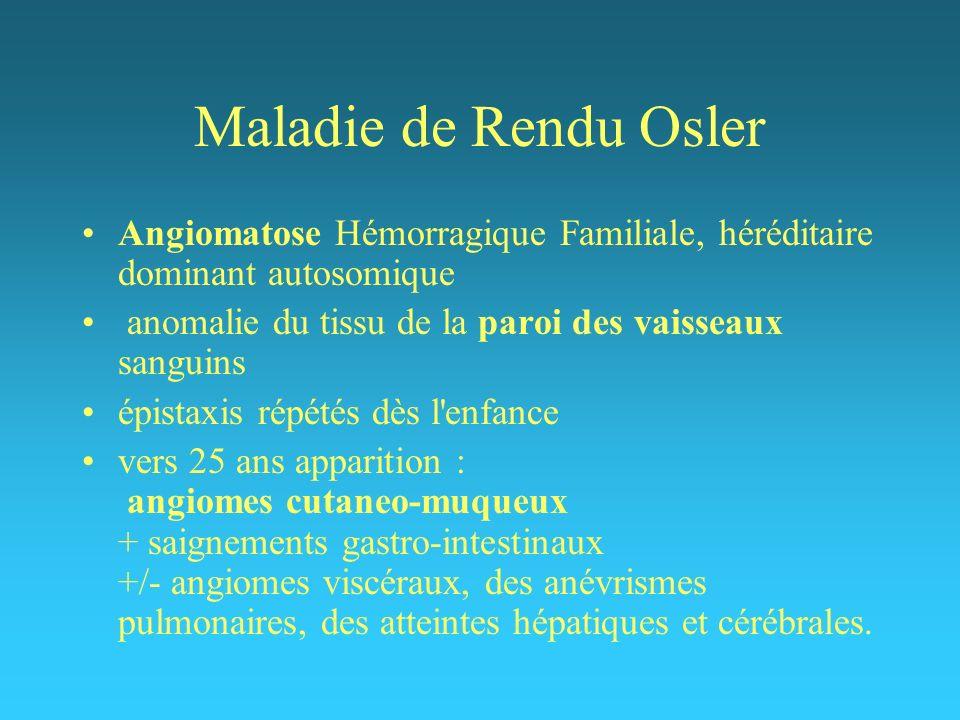 Maladie de Rendu Osler Angiomatose Hémorragique Familiale, héréditaire dominant autosomique anomalie du tissu de la paroi des vaisseaux sanguins épist