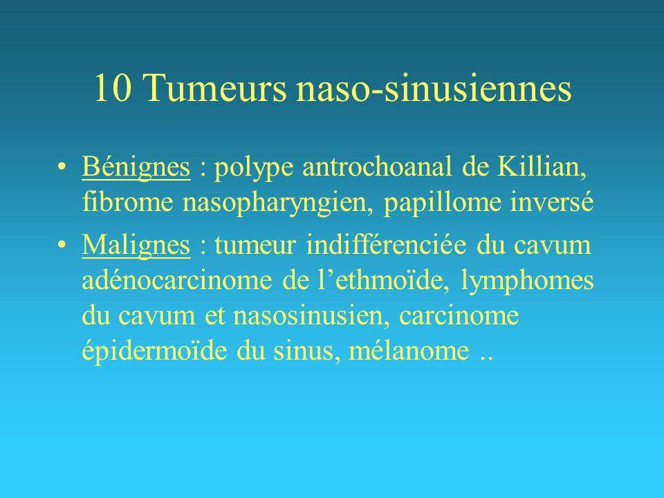 10 Tumeurs naso-sinusiennes Bénignes : polype antrochoanal de Killian, fibrome nasopharyngien, papillome inversé Malignes : tumeur indifférenciée du c