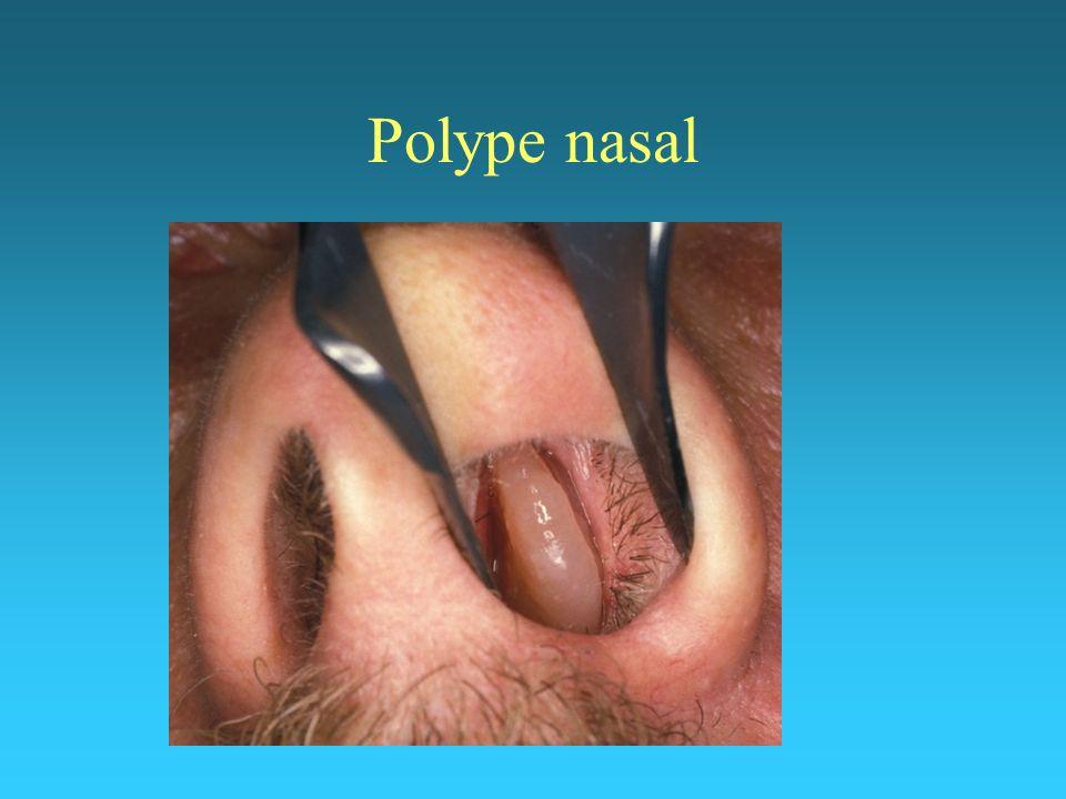 Polype nasal
